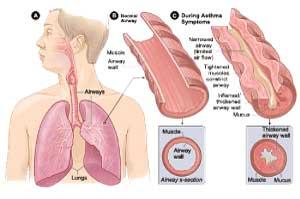 Attacco d'asma