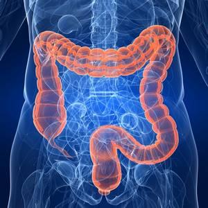 correlazione tra dislivello erettile inoltre morbo su crohn